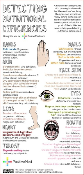 Detecting nutritional deficienciesWEB